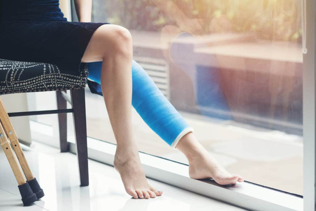 How to Stay Active With a Leg Cast