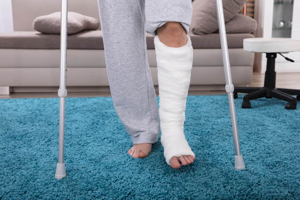 10 Great Ways to Stay Active in a Cast